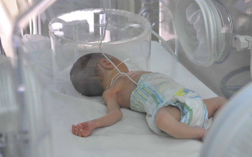 RD conmemora Día del Prematuro con mayor reducción mortalidad neonatal de los últimos años